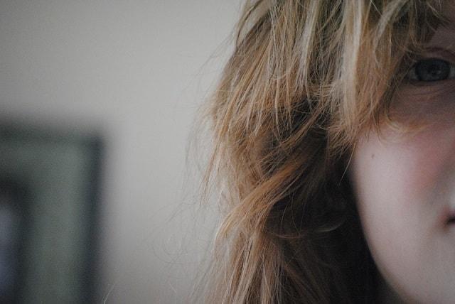 eyes dark spots